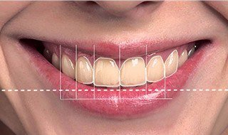 Teeth being analyzed with smile design software