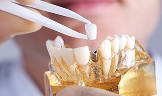 Model smile with implant supported crown