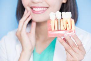 smiling dentist holding model of placed dental implants