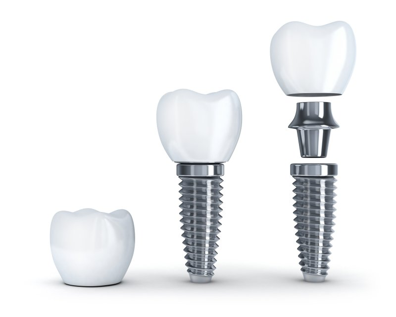 a digital image of a dental implant and all its parts